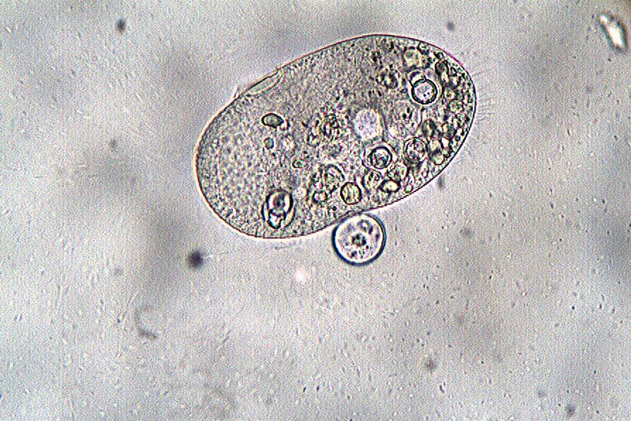 Les 2ndes CAPA ont observé des Protozoaires au microscope (X1OO)